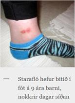 starafló hefur bitið barn í fótlegg við ökla, farin að myndast sár