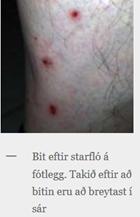 starafló hefur bitið í fótlegg